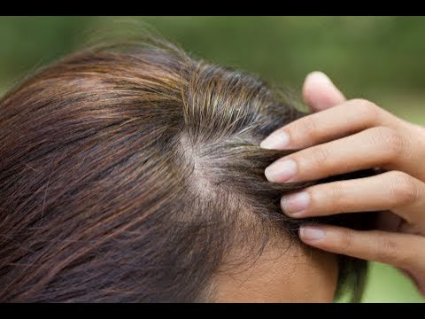 Surprisingly, These Two Things Will Stop Gray Hair In Few Short Days – How To Prevent Gray Hair