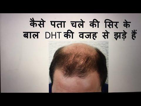 क्या पता चले की सिर के बाल DHT की वजह से झडे है