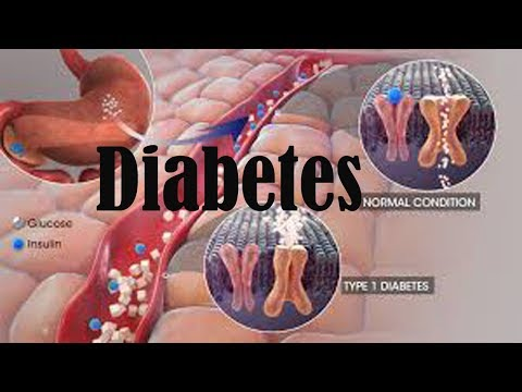 diabetes mellitus||hypoglycemia||gestational diabetes symptoms||dm 1|| 2dm||type 2||hba1c