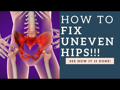 How To Fix Uneven Hips & Tilted Pelvis Muscle Imbalances With These Exercises!