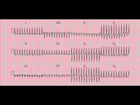 Reading the 12-lead ECG/EKG - six quick steps