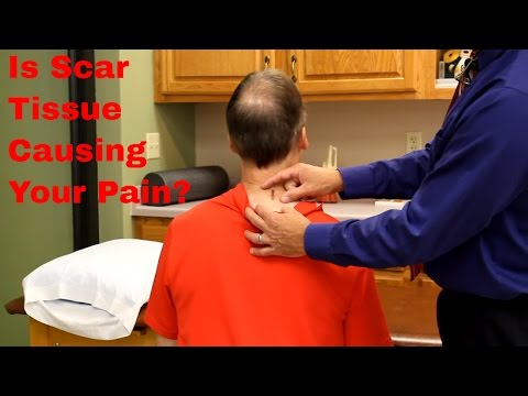 Is Scar Tissue Causing Your Pain? How We Treat It- Real Life Example