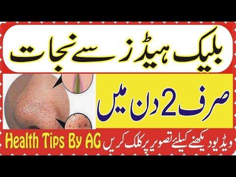 Skin Care Tips In Urdu | Blackheads ka ilaj Blackheads Khatam Karne ka Tarika in Urdu Hindi