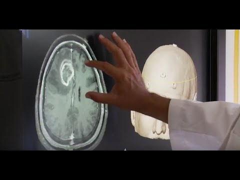 Signs you may have a brain tumor