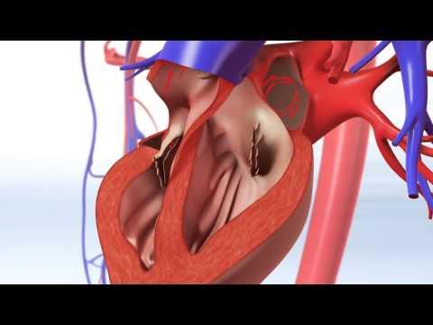Exercise & Coronary Heart Disease