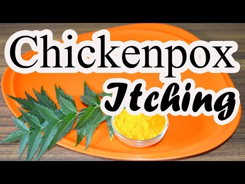 Home Remedy for Chickenpox Itching