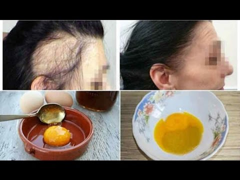 😍3 Ingredient Miracle Recipe For Fastest Hair Growth