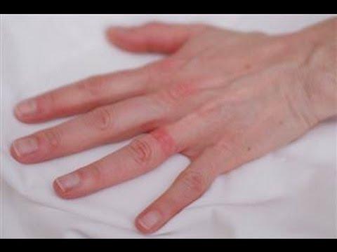 DermTV - Wedding Ring Eczema [DermTV.com Epi #111]