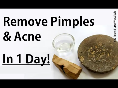 Get Rid of Pimples &  Acne (in 1 Day)_ How To Remove Pimples Overnight_ Acne Treatment SuperWowStyle