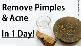 Get Rid Of Pimples Acne In 1 Day How To Remove Pimples Overnight Acne