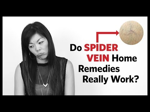 Spider Vein Home Treatment - Before and After Results