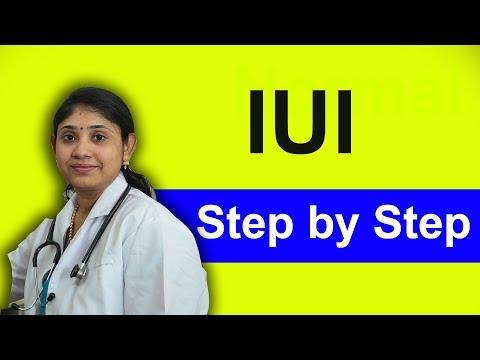 IUI step by step in tamil- விந்தணு உட்செலுத்துதல் | Intra uterine insemination  Infertility IVF