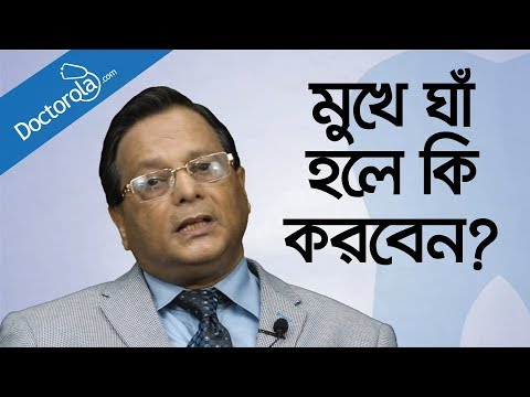 মুখের ঘা দূর করার উপায় - Mouth ulcer treatment in Bangla