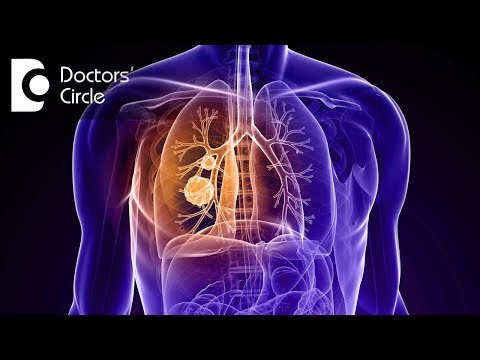 How long does it take for a blood clot in the lung to dissolve? - Dr. Shivaraj A L