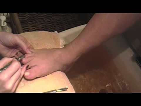 👣 Pedicure Tutorial Transformation Cutting Toenails and Removing Dead Skin Around Cuticles