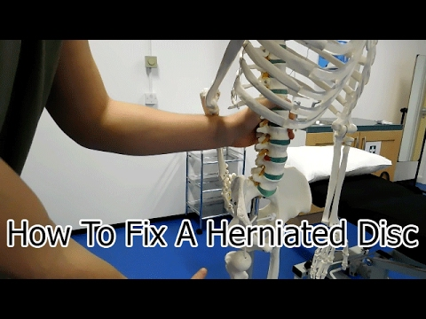 How To FIX Herniated Disc With Corrective Exercise