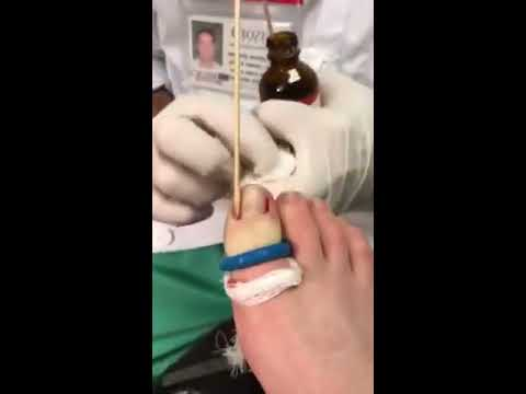 Ingrown toenail removal - podiatrist