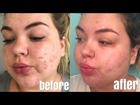 One Month Accutane Update | Results, Side Effects & Photos