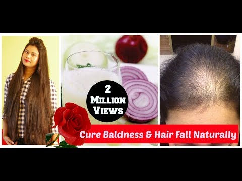 Home Remedy For Baldness & Hair Regrowth DIY|Sushmita's Diaries