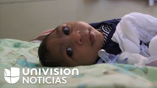 Zika in Brazil: The daily struggle of a mother and her baby with microcephaly