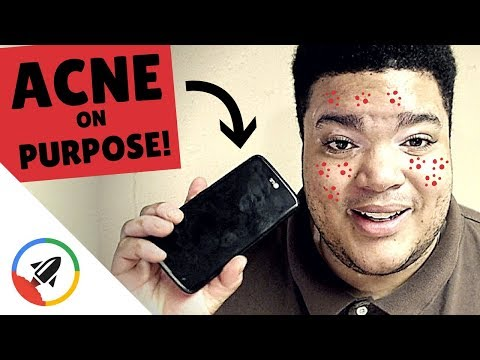How To Get ACNE  [9 Avoidable Ways]