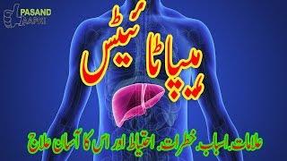 Yarkan Ki Alamat - Liver Disease Signs and Symptoms in Urdu Hindi