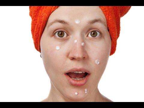 silicone cream for acne scars
