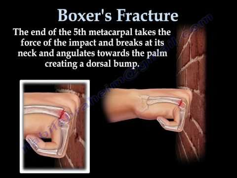Boxer's Fracture - Everything You Need To Know - Dr. Nabil Ebraheim