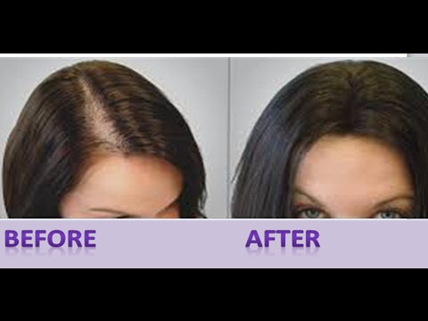 How to Stop Hair fall   Hair Growth Remedies in Hindi
