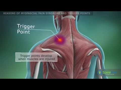 Myofascial pain syndrome and trigger points. Reasons