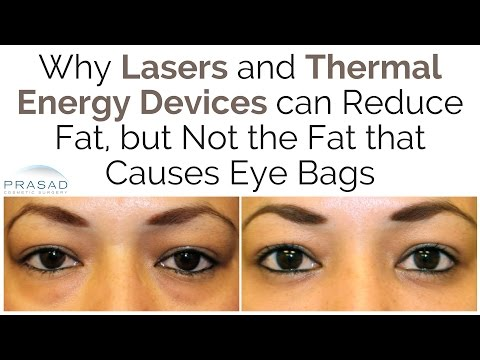 Why Lasers can Reduce Fat, but Not the Fat that Causes Eye Bags