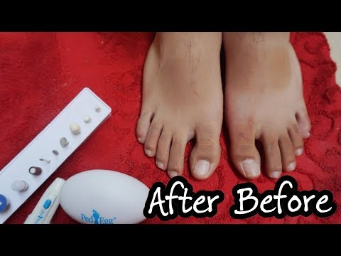 How To Remove Sun Tan Instantly - Sun Tan Removal Home Remedies By Nishoo Khan