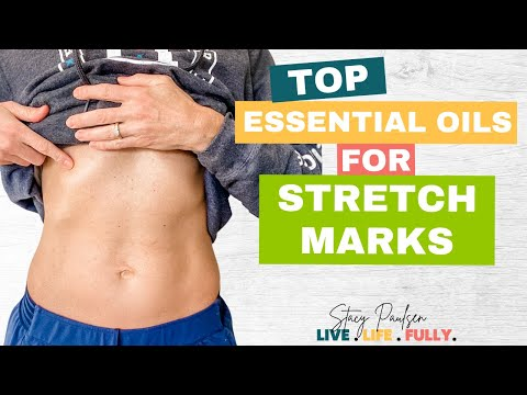Prevent and Remove Stretch Marks with Essential Oils