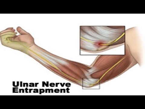 Squats and Bench Causing Arm Pain, Bicep Pain, Tendonitis Symptoms, Nerve Pain, Etc.