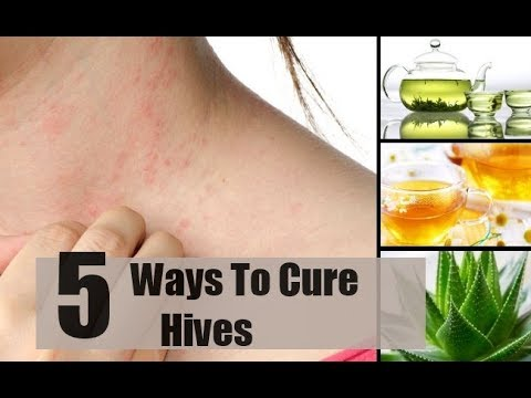 5 Ways To Get Rid Of Hives.