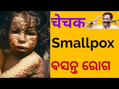चेचक/Smallpox Vaccine was 1st Invented in India not in England/Rajiv dixit videos/Swadeshichikits