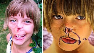 This Girls Face Was Eaten By A Raccoon, 13-Years Later Her Dream Is Finally Realized
