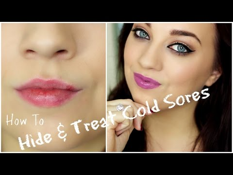 How to: Treat & Hide Cold Sores | Tuesdays Beauty Tips