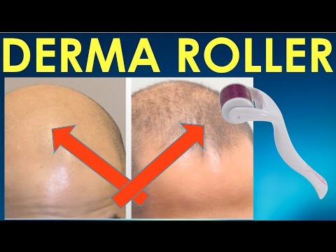 Dermaroller Before and After - Dermaroller before and after Results for Hair Growth