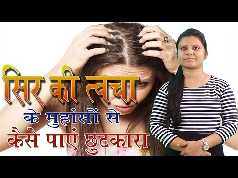 How To Treat Scalp Acne Problems | Acne Solutions सिर में होने वाले मुंहासे (Natural Tips In Hindi)
