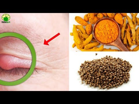 10 Home Remedies To Get Rid Of Stye Quickly
