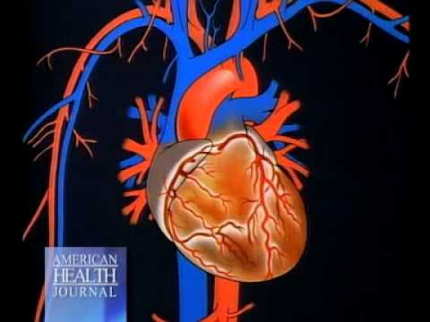 Detecting Heart Disease with Calcium Score - Scottsdale Medical Imaging