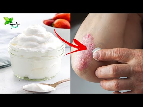 Top 5 Home Remedies for Scaly Elbows and Knees | How to Get Rid of Dry and Scaly Elbows
