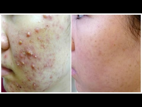 Overnight Removal Of Acne & Acne Scars I Best Indian Home Remedies | Facial Mask