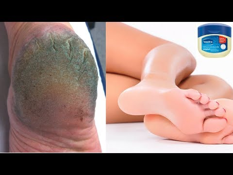 DO THIS SIMPLE HOME REMEDY WITH VASELINE TO GET RID OF CRACKED HEELS IN 3 DAYS