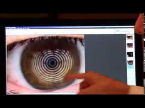 Case of the Day- New Dry Eye Testing