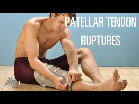 Patellar tendon rupture: Mechanism of injury and treatment options