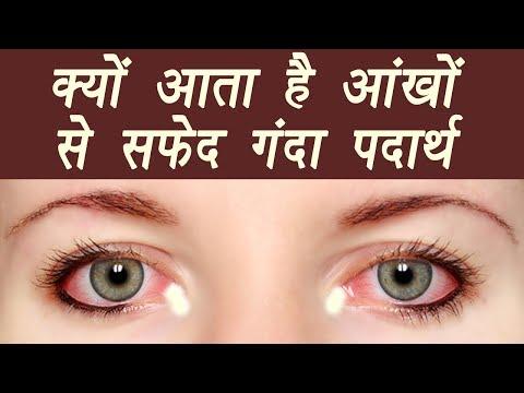 White Discharge from eyes, Know Causes | जानें आंखों से सफेद गंदा पदार्थ निकलने के कारण|Boldsky