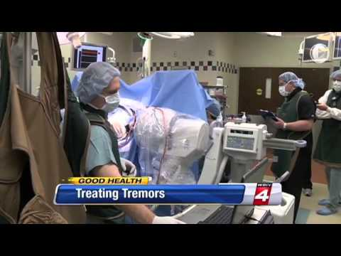 Treating Tremors