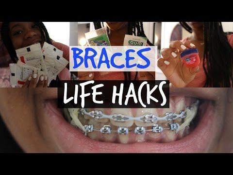 Braces Life Hacks!!